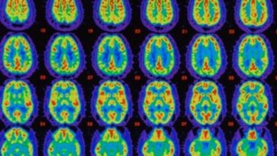 brain scans forbes study football